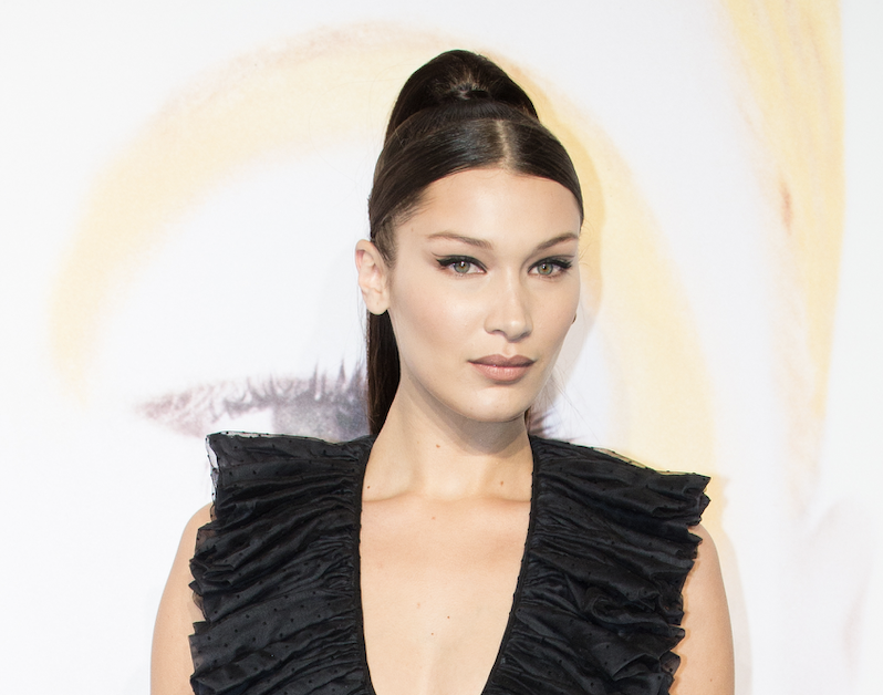 Bella Hadid's brow area is an example of a Botox brow lift procedural outcome